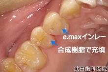 府中市の歯医者 武田歯科の審美歯科事例【右上4審美修復】(E-maxインレー)治療後