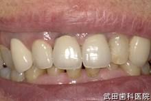 府中市の歯医者 武田歯科の審美歯科事例【右上3審美修復】治療後