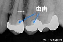 府中市の歯医者 武田歯科の審美歯科事例【左下4審美修復】術前