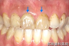 府中市の歯医者 武田歯科の審美歯科事例【左上4,5,6審美修復】(E-maxインレー)治療前
