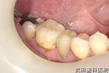 府中市の歯医者 武田歯科の審美歯科事例【右下6審美修復】(e.maxインレー)治療後