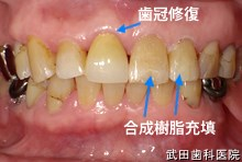 府中市の歯医者 武田歯科の審美歯科事例【左上4,5,6審美修復】(E-maxインレー)治療後