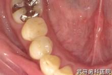 府中市の歯医者 武田歯科の審美歯科事例【右下5審美修復】(e.maxインレー)治療後