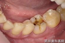 府中市の歯医者 武田歯科の審美歯科事例【左下6審美修復】(E-maxインレー)治療前