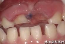 府中市の歯医者 武田歯科の外傷事例【右上1歯牙破折】上顎AA 乳歯脱臼(埋入)