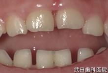 府中市の歯医者 武田歯科の外傷事例【上顎AA 乳歯脱臼(埋入)】1ヶ月後
