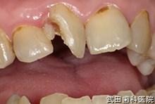 府中市の歯医者 武田歯科の外傷事例【右上1歯牙破折】治療前