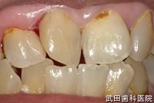 府中市の歯医者 武田歯科の外傷事例【右上1歯牙破折】治療後