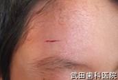 府中市の歯医者 武田歯科の外傷事例【額の傷治療】経過