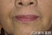 府中市の歯医者 武田歯科のその他事例【肉芽腫性口唇炎】治療後