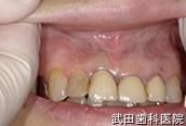 府中市の歯医者 武田歯科のその他事例【上顎歯肉口内炎】治療後
