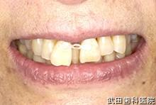 府中市の歯医者 武田歯科のその他事例【上顎前歯の隙間矯正】