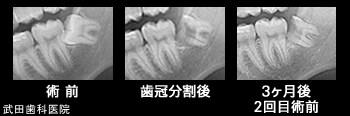 府中市の歯医者 武田歯科の親知らず抜歯事例【右下親知らず抜歯】CT画像