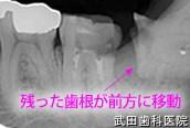 府中市の歯医者 武田歯科の親知らず抜歯事例【右下親知らず抜歯】治療1週間後