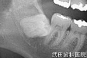 府中市の歯医者 武田歯科の親知らず抜歯事例【右下親知らず抜歯】治療前