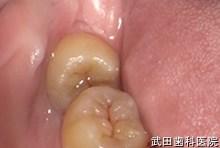 府中市の歯医者 武田歯科の親知らず抜歯事例【左上4,5,6審美修復】(E-maxインレー)治療前