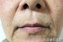 府中市の歯医者 武田歯科のヒアルロン酸注入事例【左右ほうれい線】注入前