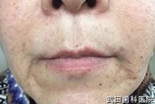府中市の歯医者 武田歯科の ヒアルロン酸注入事例【左右ほうれい線】注入後1日