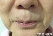 府中市の歯医者 武田歯科の ヒアルロン酸注入事例【左右ほうれい線】注入前