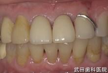 府中市の歯医者 武田歯科の 義歯の事例【左下3,4部ノンクラスプ義歯】装着前