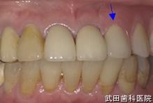 府中市の歯医者 武田歯科の 義歯の事例【左下3,4部ノンクラスプ義歯】ノンクラスプ義歯装着後