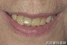 府中市の歯医者 武田歯科の 義歯の事例【非対称の改善】旧義歯装着時
