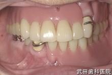 府中市の歯医者 武田歯科の 義歯の事例【非対称の改善】新義歯装着後