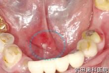 府中市の歯医者 口腔外科専門医 武田歯科の口腔外科事例唾石症