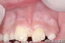 府中市の歯医者 口腔外科専門医 武田歯科の口腔外科 上唇小帯付着異常