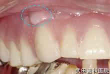 府中市の歯医者 口腔外科専門医 武田歯科の口腔外科事例 右上顎骨隆起 骨隆除去