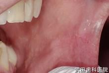 府中市の歯医者 口腔外科専門医 武田歯科 左頬粘膜 血栓
