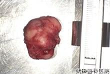 府中市の歯医者 口腔外科専門医 武田歯科 左頬部 多形性腺腫