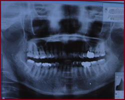 府中市の歯医者 口腔外科専門医 武田歯科の口腔外科のレントゲン